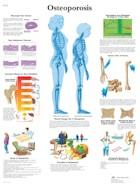 Anatomische Poster Osteoporosis