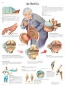 Anatomische Poster Arthritis