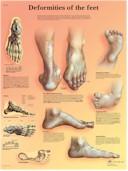 Anatomische Poster Afwijkingen van de Voet