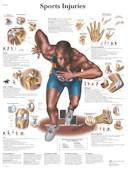 Anatomische Poster Sport Blessures