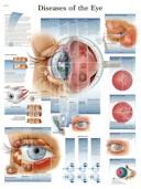 Anatomische Poster Diseases of the Eye / Ziektes van het oog