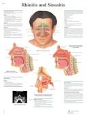 Anatomische Poster Rhinitis & Sinusitis