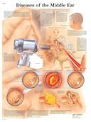 Anatomische Poster Diseases of the Middle Ear / Ziektes van het middenoor