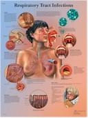 Anatomische Poster Respiratory Tract Infections / Infecties van de Luchtwegen