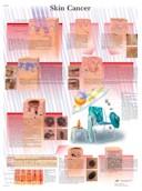 Anatomische Poster Skin cancer / Huidkanker