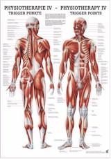 Anatomische poster Trigger points