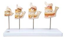 Anatomisch model van het ontwikkeling van het gebit