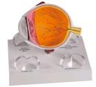 Dwarsdoorsnede van het oog met verwisselbaar hoornvlies