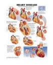 Poster Heart Disease (Progression of Heart Disease in Atherosclerosis)