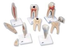 5-delige serie van de tanden